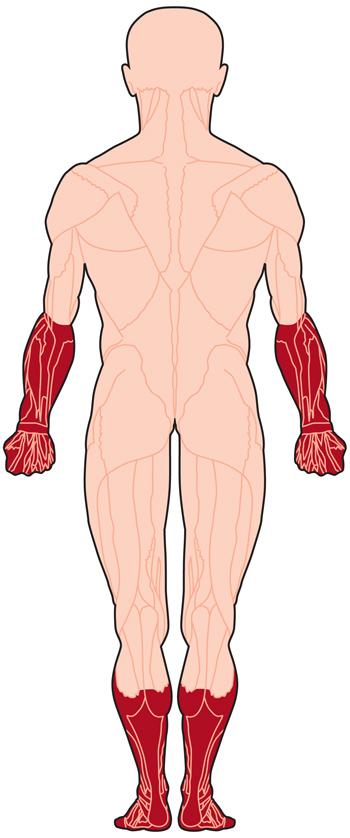 حثل العضلات القصيا