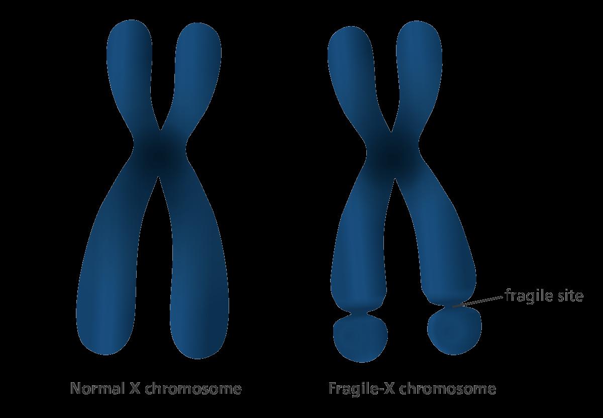 متلازمة كروموسوم اكس الهش