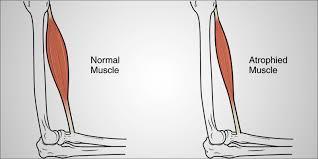 ما الفرق بين حثل العضلات و ضمور العضلات ؟