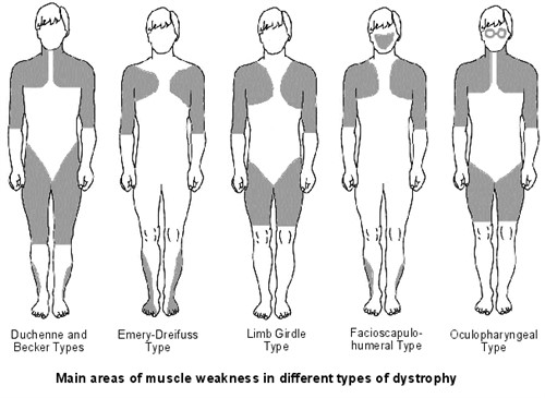 مرض الحثل العضلي